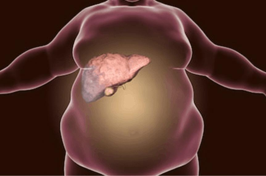 fatty liver disease in veterans